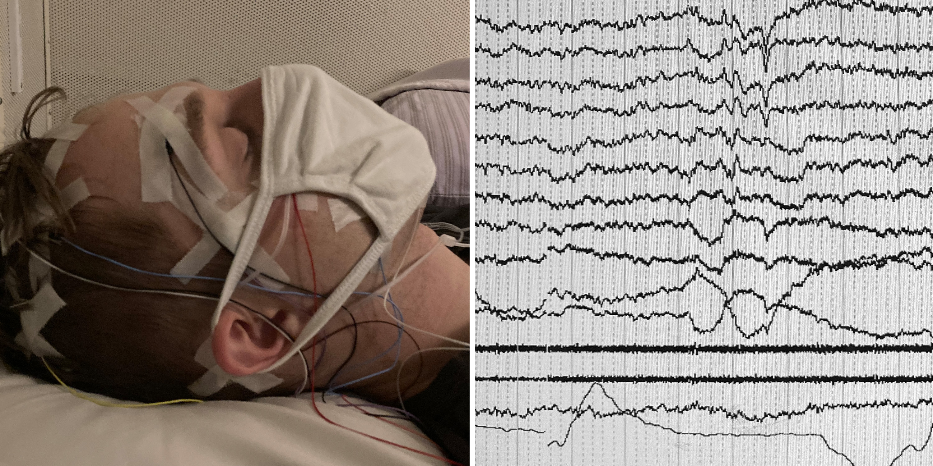 a man in a mask reclines on a pillow and an image of an eeg readout